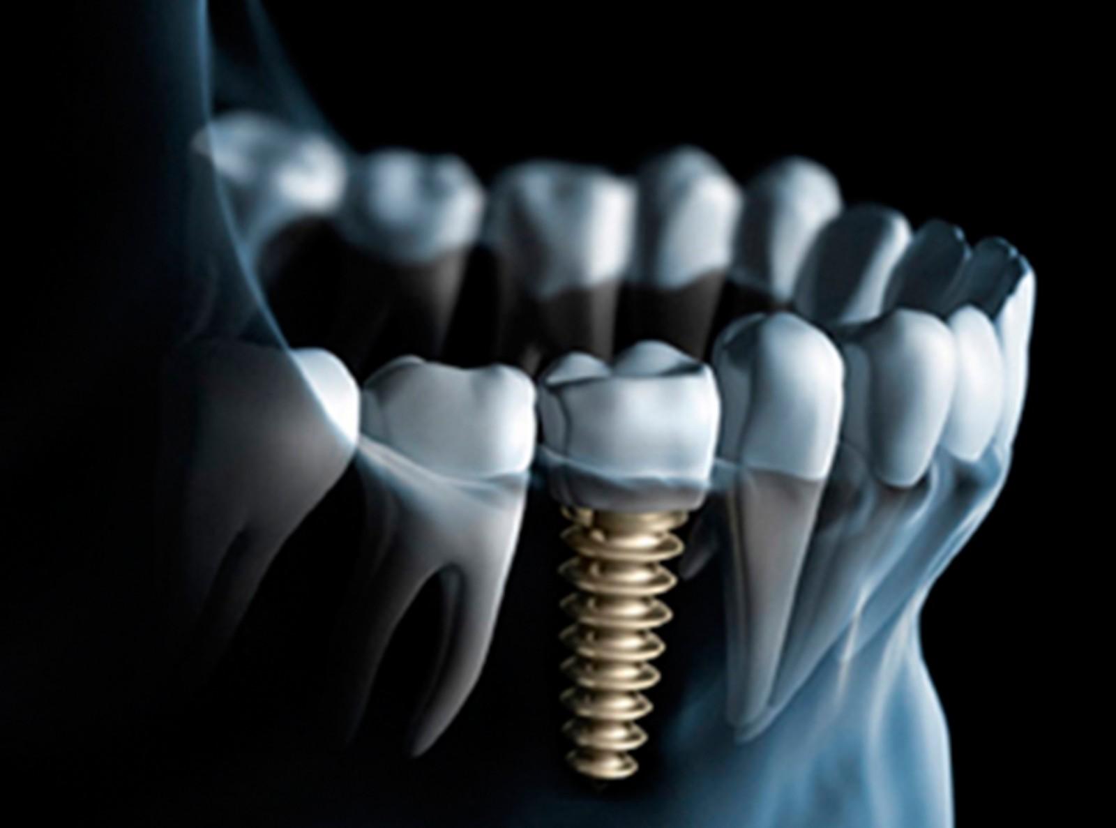(Tand-)Implantaten: Hoe, Wat En Waarom?
