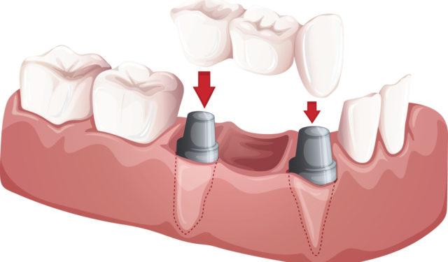 Cosmetisch Tandheelkunde 2: Kronen En Bruggen