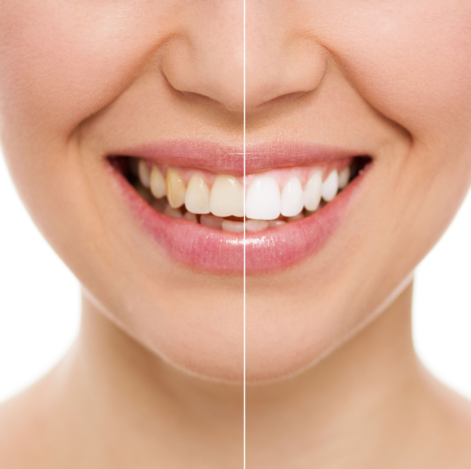 Het Bleken van Tanden en Kiezen