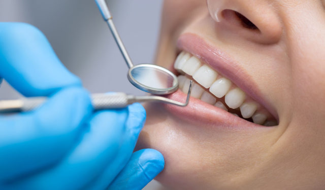 Cosmetische Tandheelkunde 1: Facings En Stralend Witte Tanden